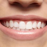 teeth whitening Services in calgary